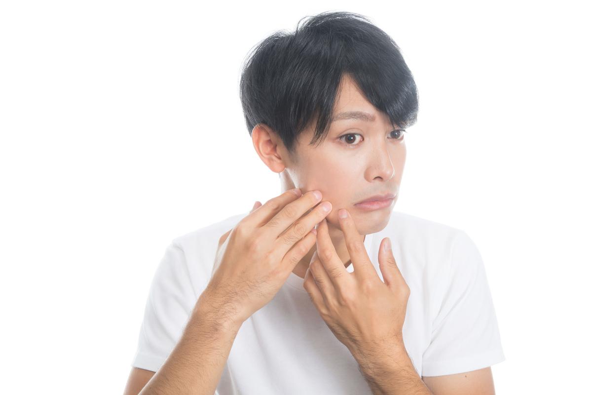 肌の悩みを持つ男性