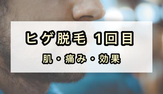 【ヒゲ脱毛1回目】痛み・肌の様子・効果の経験談を紹介!